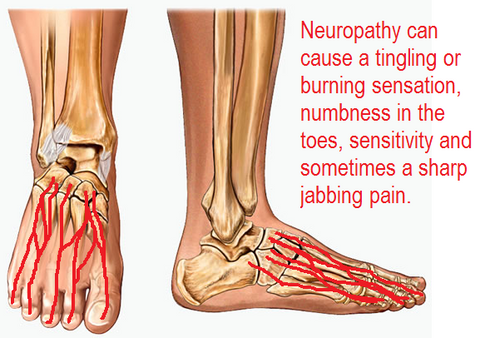 Z Coil Neuropathy Shoes Can Help Pain Swelling And Mobility