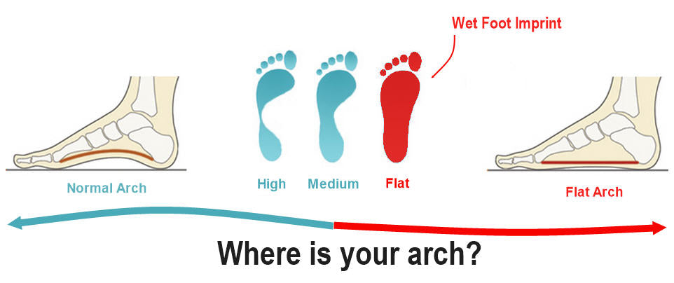 Flat Foot Arch - Z-CoiL