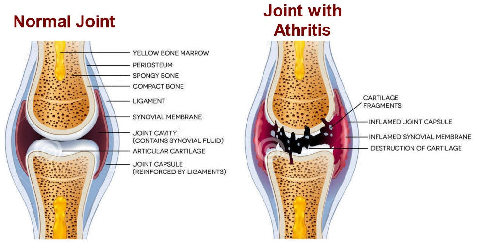 Joint with Arthritis
