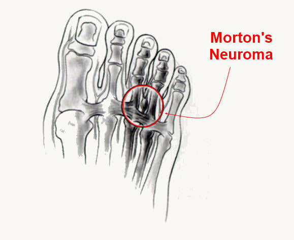 Morton's Neuroma Relief from Z-CoiL