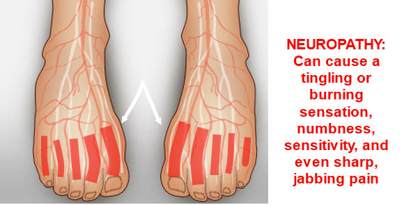 Neuropathy Relief from Z-CoiL