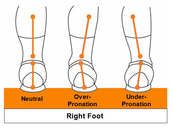Over-Pronation Image