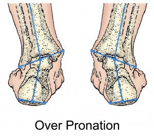 over pronation graphic