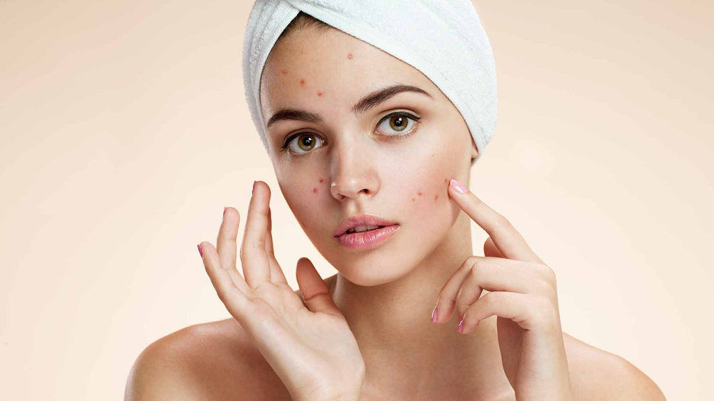 Managing Cystic Acne without a Prescription