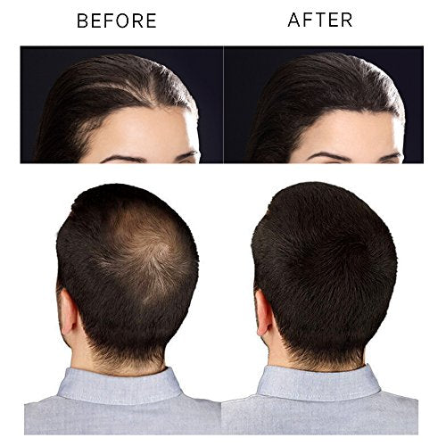 2nd Generation Hair Building Fibers for both men & women 0.8 oz