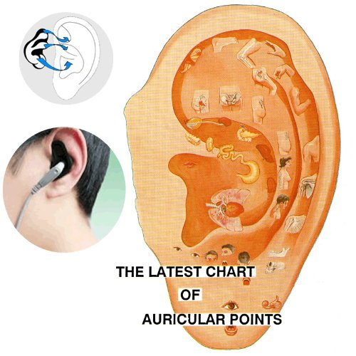 Acupuncture Benefits Arthritis Medicomat-21 Chinese Acupuncture Points Alternative Treatment at Home Sciatica Anxiety