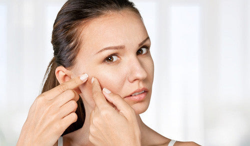 Wedding Skin Care Tips: The Last Minute Zit