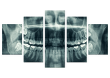 Xray See Through Dentist 5 Piece Canvas Wall Art