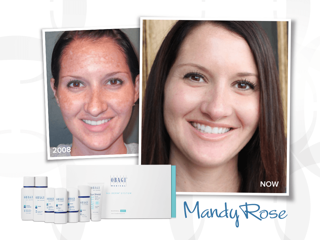 Blogger Mandy Rose Shares Her Obagi Transformation