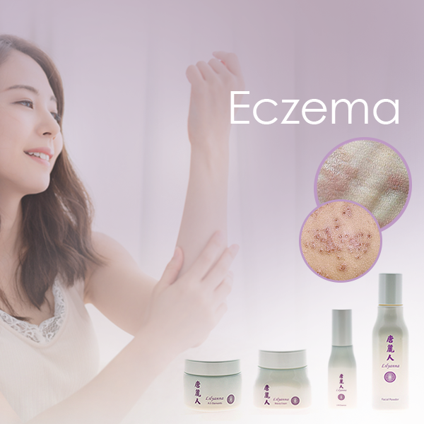 Eczema Treatment