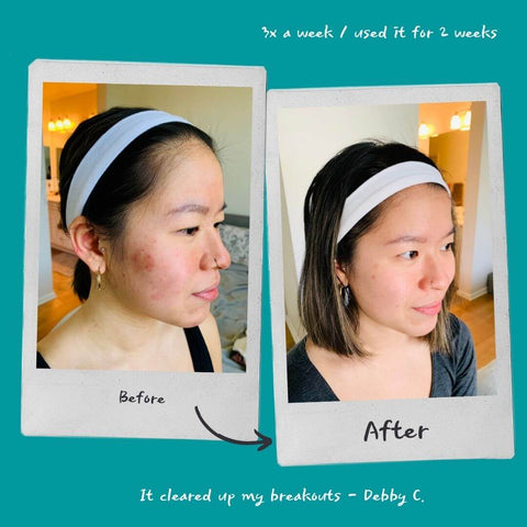 This product cleared up my breakout within a week!