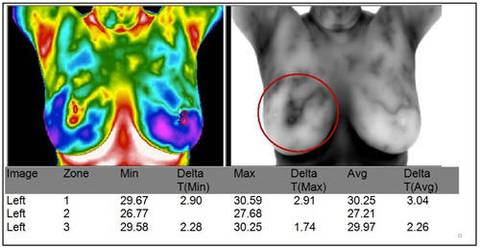 Breast Thermography - North Texas Wellness Center