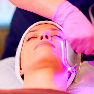 Facial con Solitone Photo Rejuvenation o Lead Platform