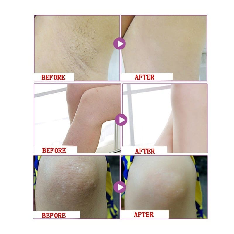 Whitening Cream For Private Parts