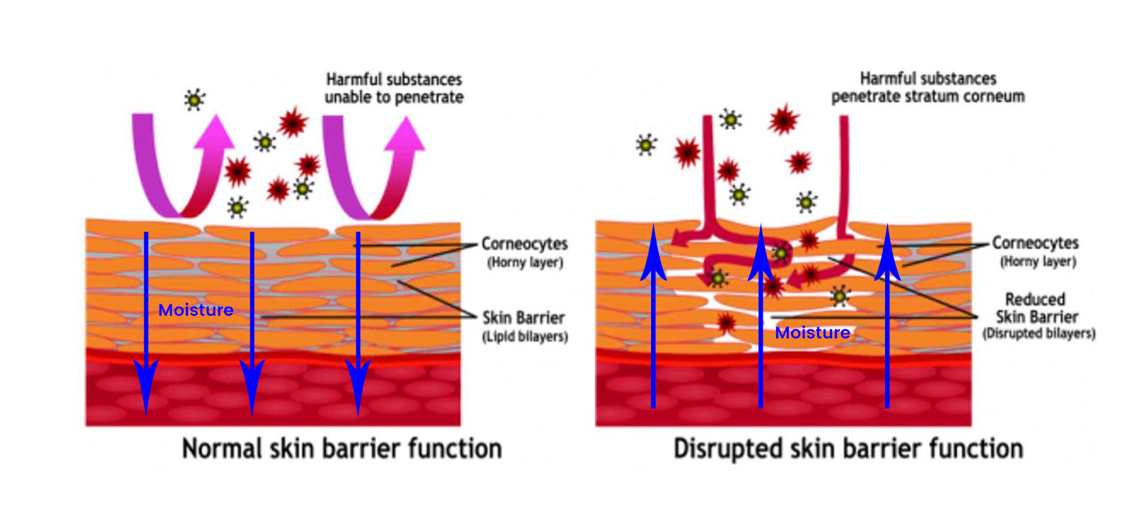 what_is_skin_barrier