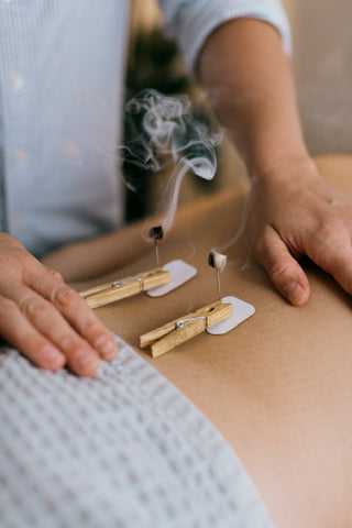 Acupuncture needles with Moxibustion burning with smoke at Vyne health for a fertility and pregnancy treatment