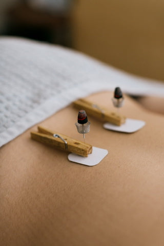 Smokeless Moxibustion burning on needle to support pregnancy at Vyne health