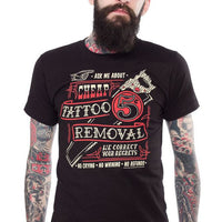 Cheap Tattoo Removal - High Voltage Clothing & Accessories Ltd