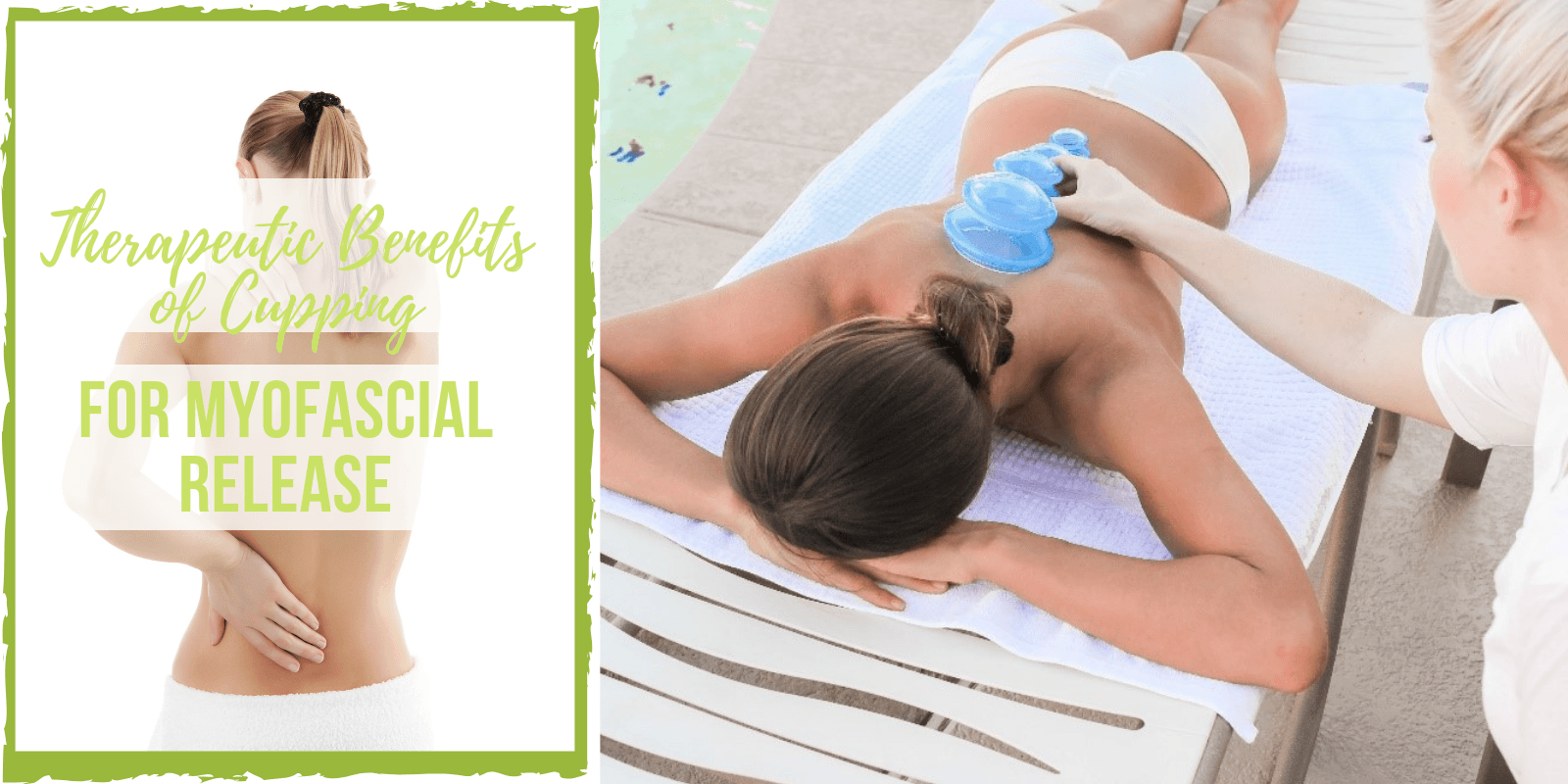 Therapeutic Benefits of Cupping for Myofascial Release - Lure Essentials