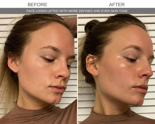 Face Cupping Before and After Results