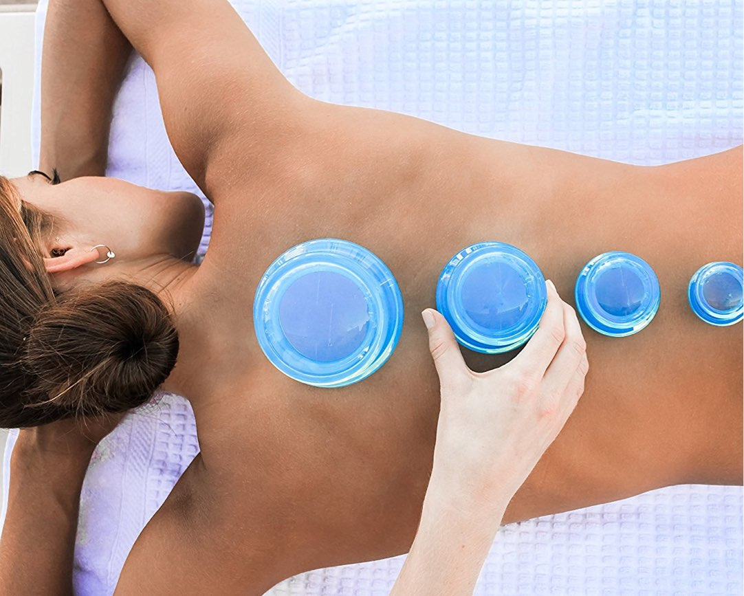 Woman undergoing cupping therapy on back