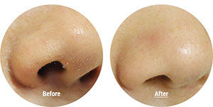 Blackheads Removal Mask Before and After