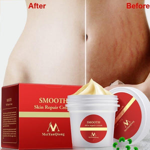 Maternity Scar Removal Cream Make Your Lives