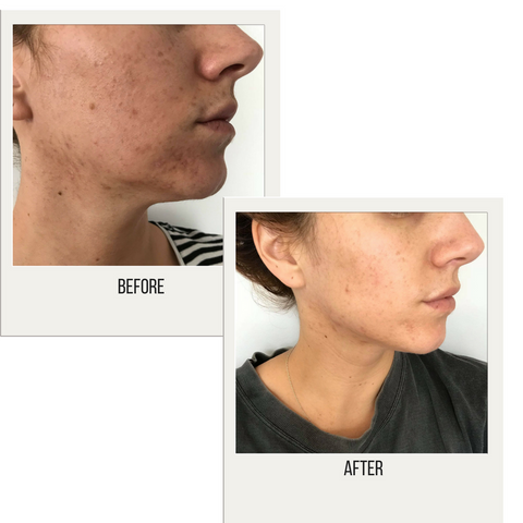 Before and After Pigmentation and problem skin scaring with oxygen natural skincare