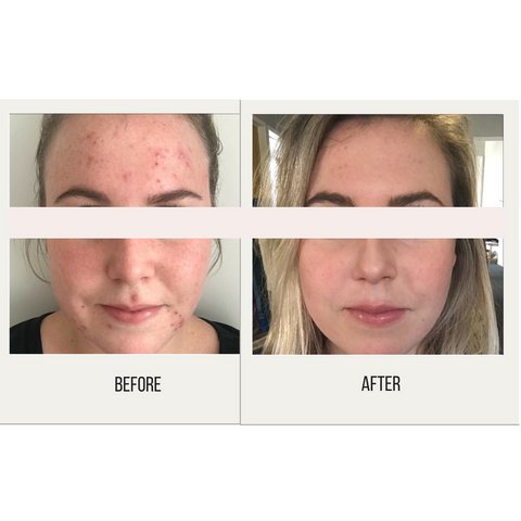 Skin before and after using Oxygen natural skincare