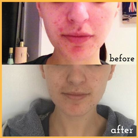 problem skin before and after