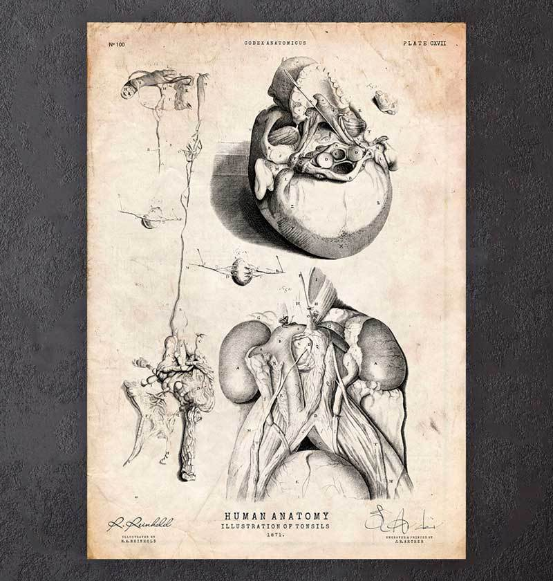 Tonsils anatomy poster