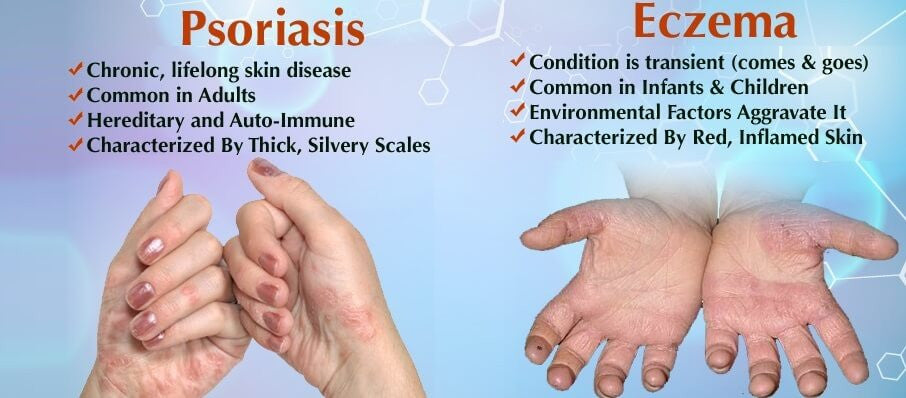 What's the difference between psoriasis and eczema?