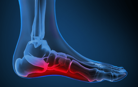 The Foot and Ankle Store of Mass General Hospital – Mass General
