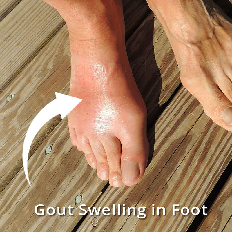 Gout in Your Feet | Best FIR Socks for Treating Gout, Gouty