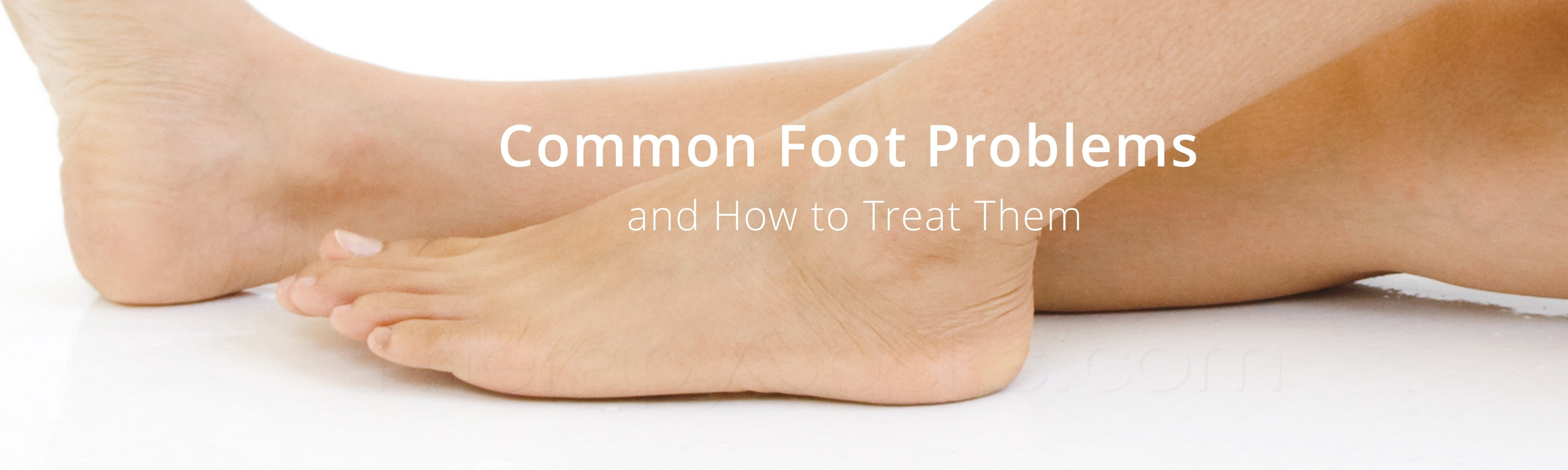 List of Common Foot Problems
