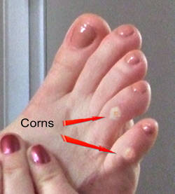 Arrows showing common location of corns on toes