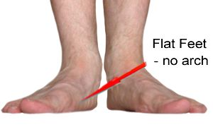 Flat Feet have collapsed arches