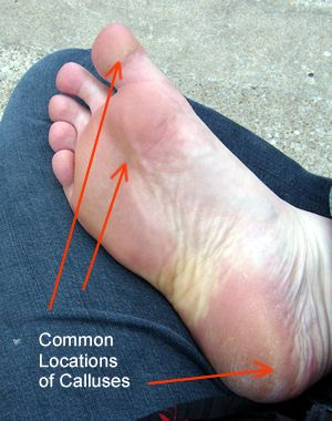 Locations of Foot Calluses