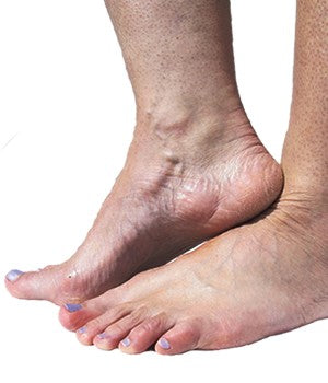 many people suffer from Raynaud's in their Feet