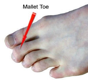 Mallet Toes | Treat Mallet Toes with Prolotex Far Infrared ...