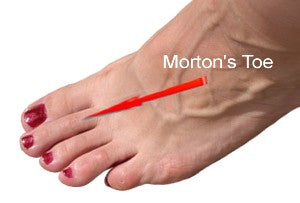 Long second toe is called a Morton's Toe