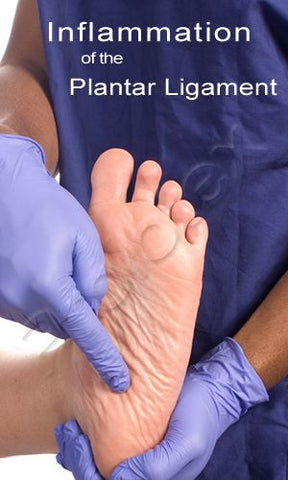 Location of Inflammation of the Plantar Ligament