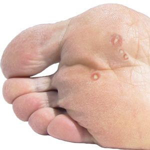 Plantar warts what are plantar warts how to treat - Are warts contagious in a swimming pool ...