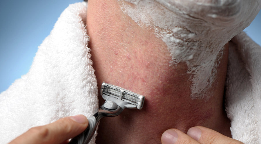 Getting Rid of Razor Bumps on Neck for Good