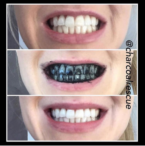 Charcoal Rescue activated charcoal teeth whitening powder before and after photos white smile