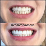 Triplets! Charcoal Teeth Whitening Powder