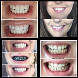 Twins! Charcoal Teeth Whitening Powder