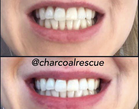3 month supply Mask & Teeth Whitening Powder