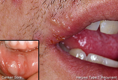 Cacao Butter helps fight and heal cold sores
