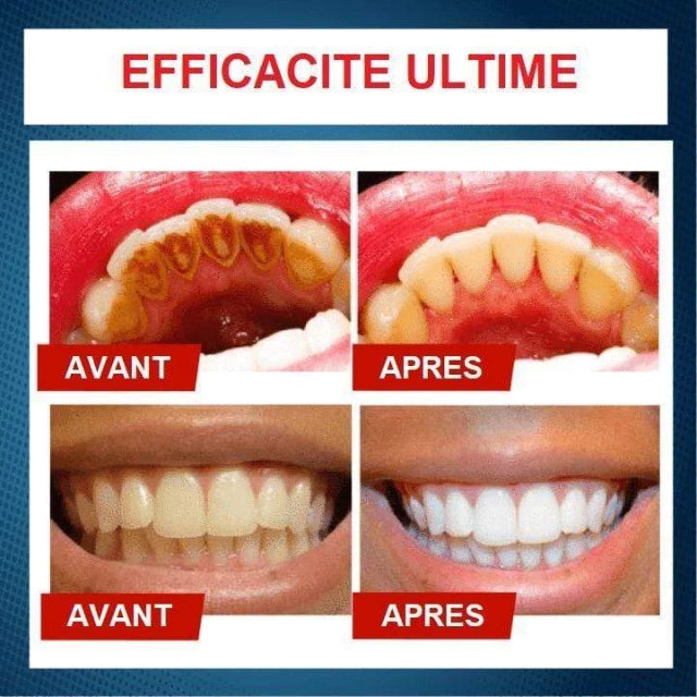 Gadgets d'Eve PEARLI™ : Dentifrice Blanchissant Anti-Taches Intensif